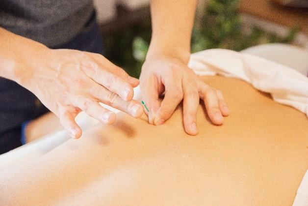 Comment pratiquer la médecine traditionnelle chinoise ? - Une séance d'acupuncture